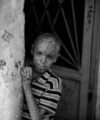 Burnt child in Homs